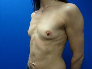 Manhattan Breast Augmentation Before 9